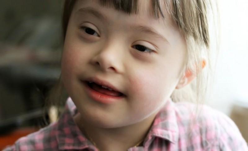 21 martie - Ziua Mondială a Sindromului Down, marcată la Botoșani