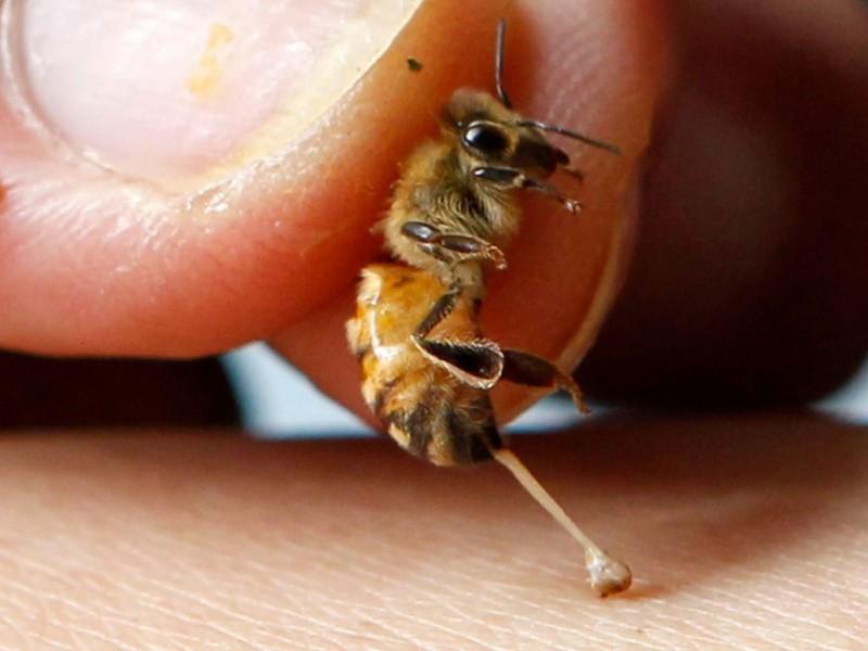 A ajuns la spital, dupa ce a fost intepata de o albina si nu mai putea respira!