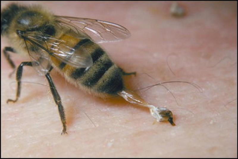 A ajuns la Urgențe după o înțepătură de albină. Ce sfat i-au dat medicii!