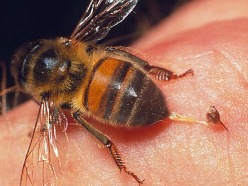A vrut să mănânce un fruct, dar a ajuns la spital înțepată de o albină!
