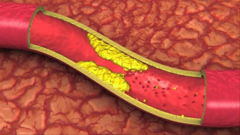 Așa îți dai seama că ai arterele înfundate. Simptome care anunță că ești în mare pericol!