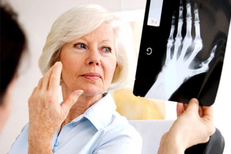 Boala articulațiilor care afectează mai mult femeile. Netratată, duce la invaliditate