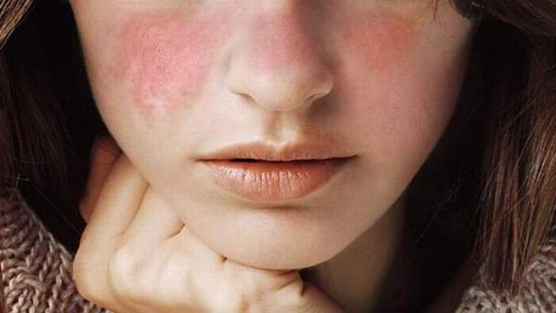 Boala cu o mie de fețe care atacă oasele, plămânii rinichii și sistemul nervos!
