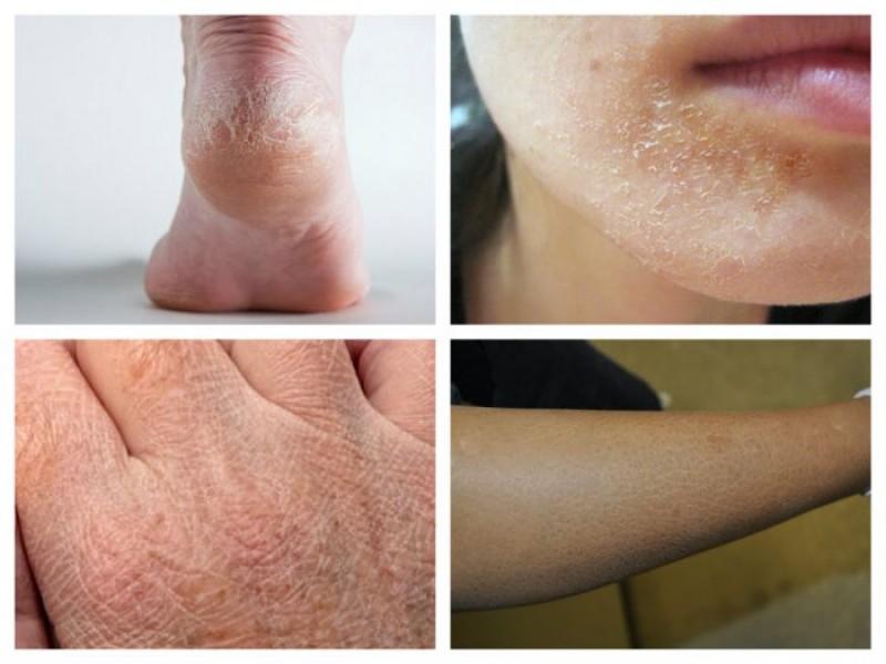 Bolile de tiroidă și de ficat se văd pe piele!