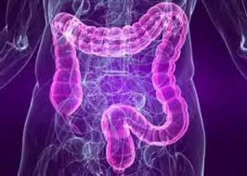 Cancerul intestinului gros: 9 din 10 pacienți ar putea fi salvați dacă s-ar prezenta la medic încă de la aceste prime simptome