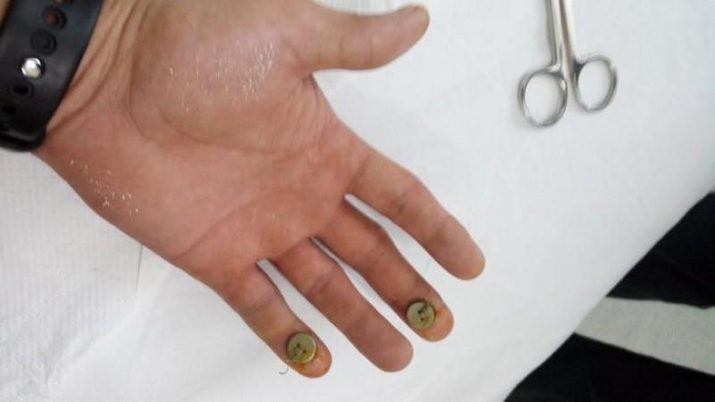Caz halucinant în România. Operat la degetul greşit şi mustrat că nu şi-a ţinut mâna bine