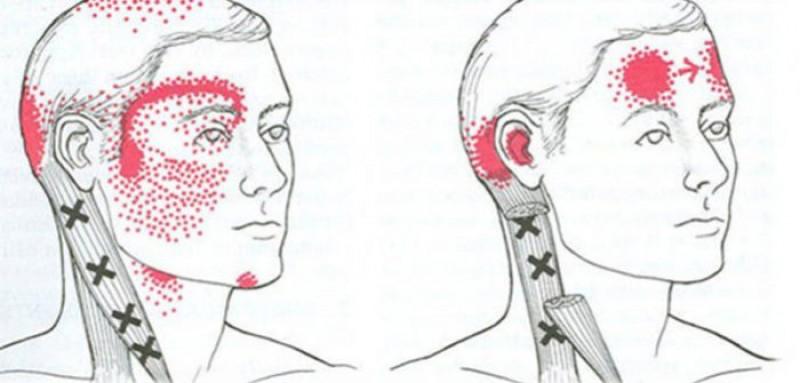 Ce boli pot ascunde durerile de cap și când e cazul să mergi la doctor