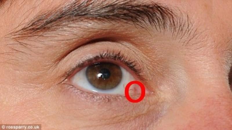 Ce dezvăluie ochii despre sănătatea ta!