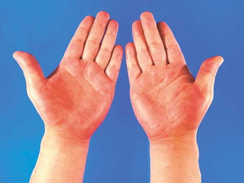 Ce se întâmplă cu mâinile tale dacă ai probleme cu ficatul?