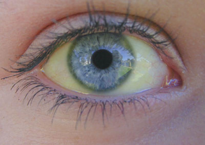 Ce spun despre starea ta de sănătate ochii, pielea şi cavitatea bucală!