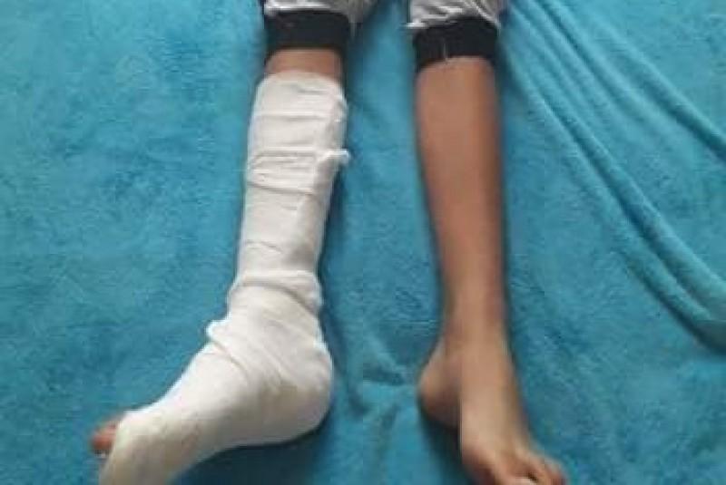 Copil de 14 ani din județ, transferat la Iași de urgență: a suferit multiple fracturi la un femur, după un accident