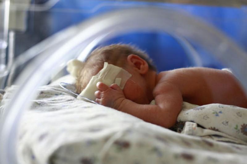 Copilul născut cu șase degete la mâini a murit