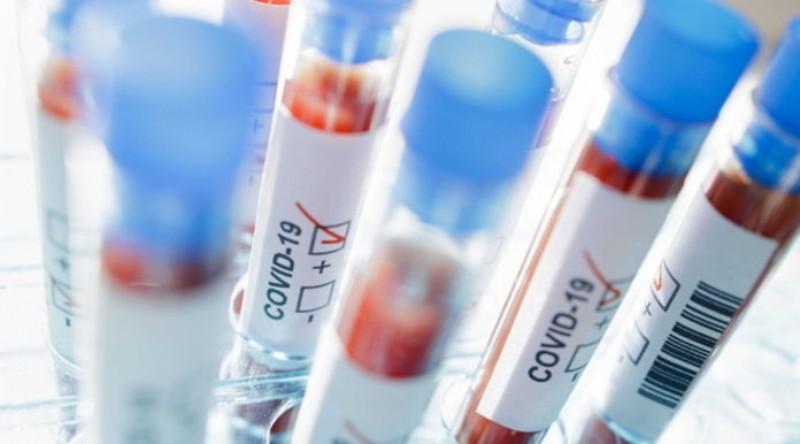 Coronavirus în România: Alte 5 decese din cauza coronavirusului. Bilanțul a ajuns la 156