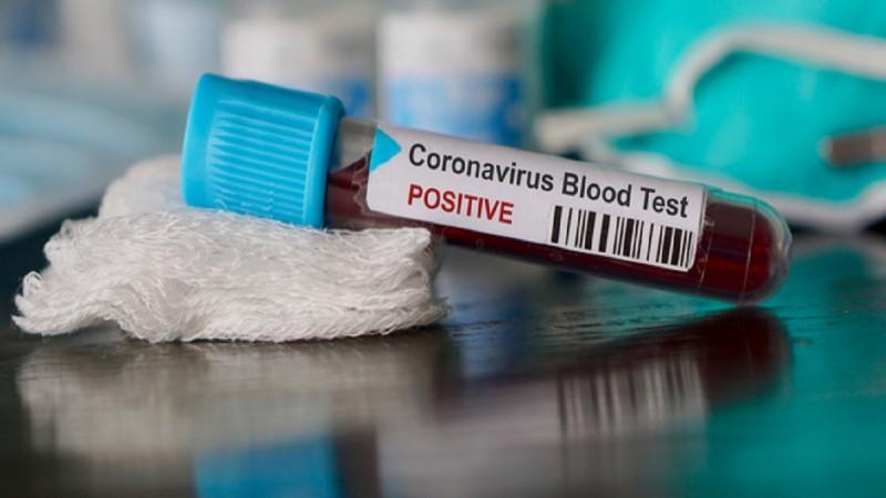 COVID. Cinci decese și peste 230 de vindecări raportate în ultimele două zile