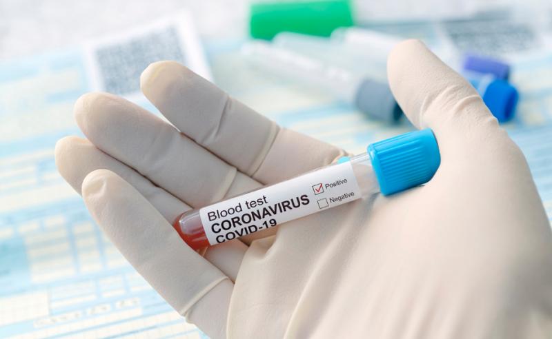 COVID: Număr record de teste la Botoșani. Puțin peste 100 de cazuri active rămase. Un nou deces survenit în rândul infectaților