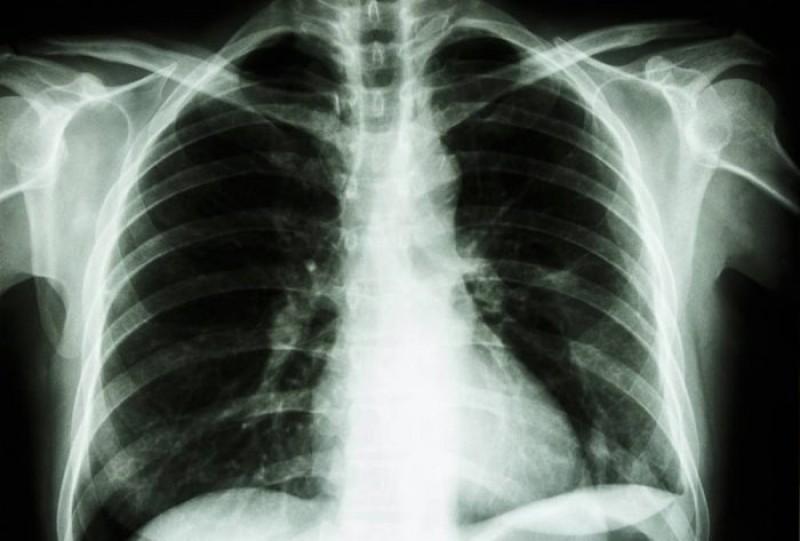 Cum se aude o boală de plămâni extrem de gravă?