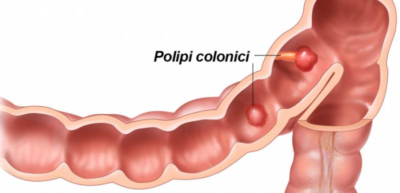 Cum știi dacă ai polipi pe colon și în ce situații pot duce la cancer