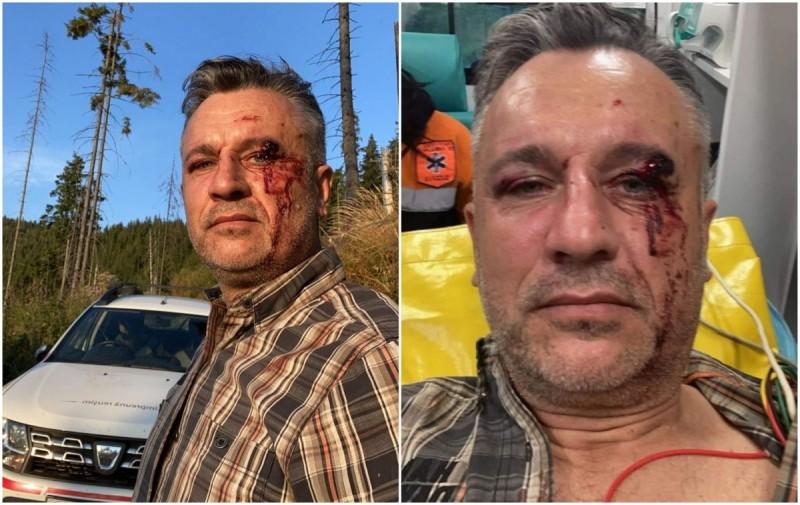 """Iar vom fi numiți """"BARBARII EUROPEI"""": O echipă de filmare a fost bătută crunt de 20 de persoane lângă noi, la Suceava. Documentau un reportaj internațional despre tăierile ilegale de pădure - VIDEO"""