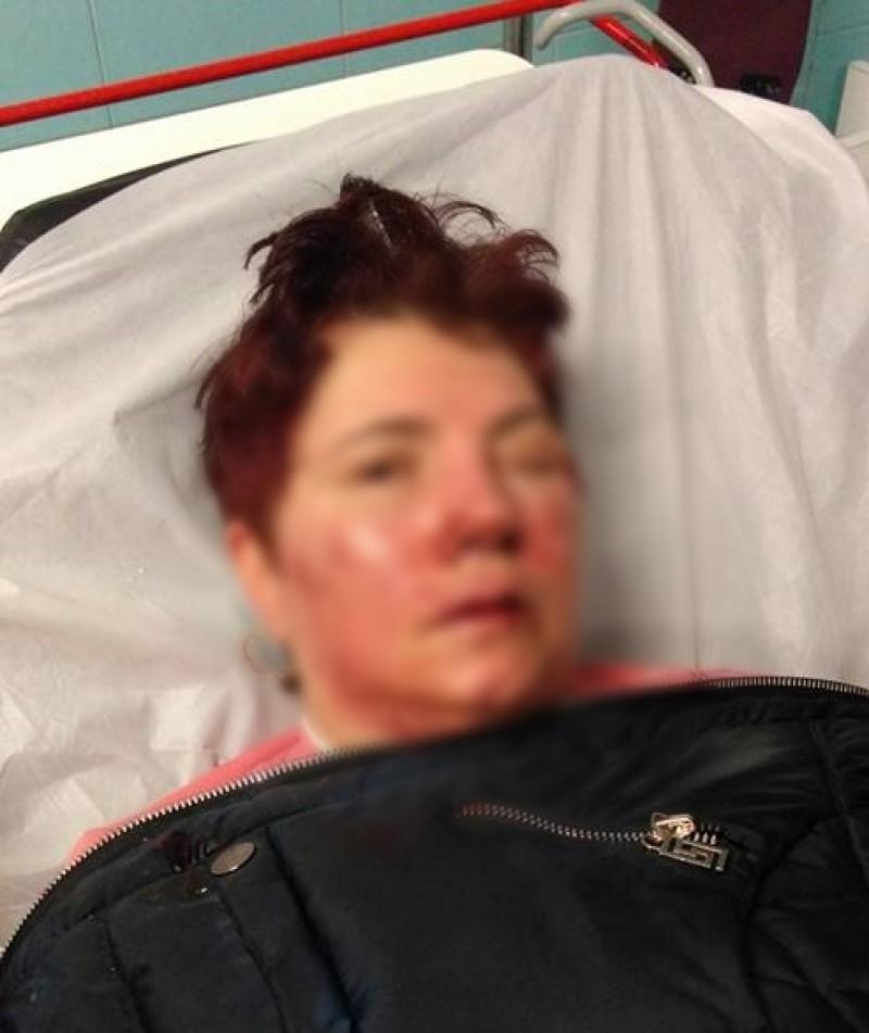 IMAGINI ȘOCANTE cu ultima femeie atacată în Botoșani! Fiul victimei oferă recompensă celui ce poate da informații despre agresor! FOTO