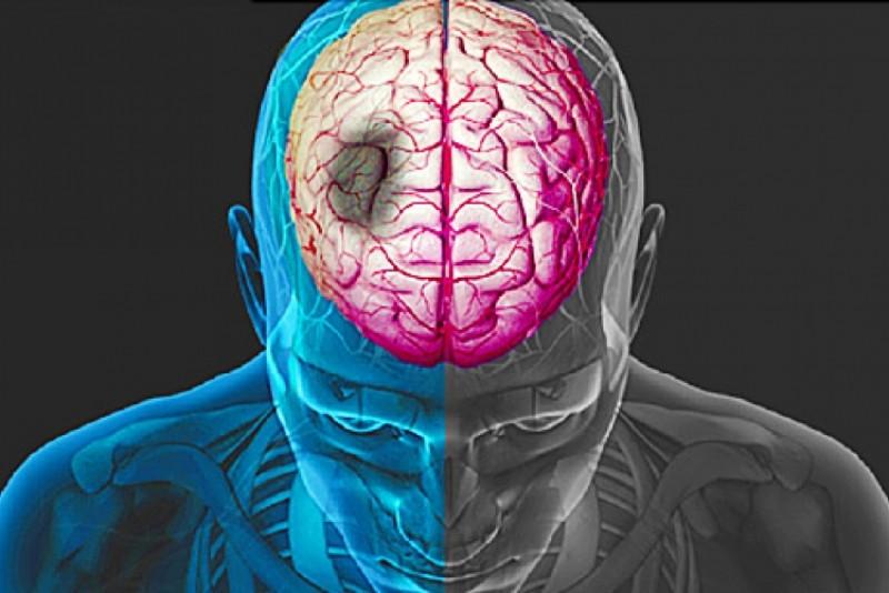 IMPORTANT! Semne premergătoare accidentelor vasculare cerebrale