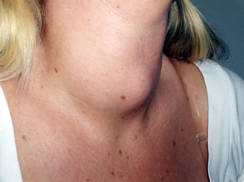 Lipsa iodului și gușa tiroidiană. În ce zone ale țării se întâlnesc, cel mai des, boli de tiroidă!