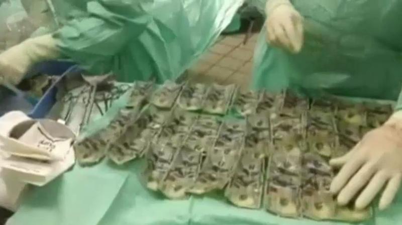O femeie a înghițit banii de concediu, după o ceartă cu soțul