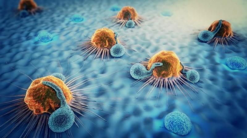 """Oncolog: """"Obezitatea, fumatul, consumul de grăsimi și expunerea la talc cresc considerabil riscurile acestui tip de cancer periculos!"""""""