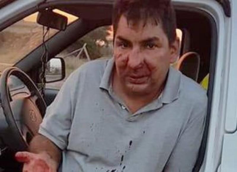 El este Yuri, zidarul român bătut de 7 persoane pentru că le-a cerut să nu arunce deșeuri într-un parc din Italia