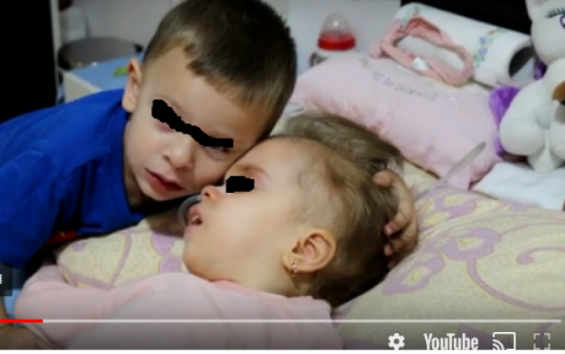 """Povestea fetiţei din Botoșani care se încăpăţânează să lupte cu o tumoră gigant. """"Nu şi-a strigat niciodată fratele geamăn pe nume"""""""