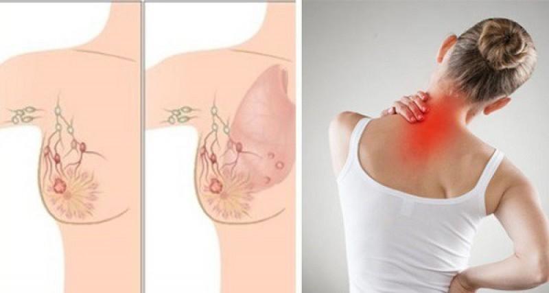 Primele simptome ale cancerului mamar. Când e durerea de sân un semn de alarmă