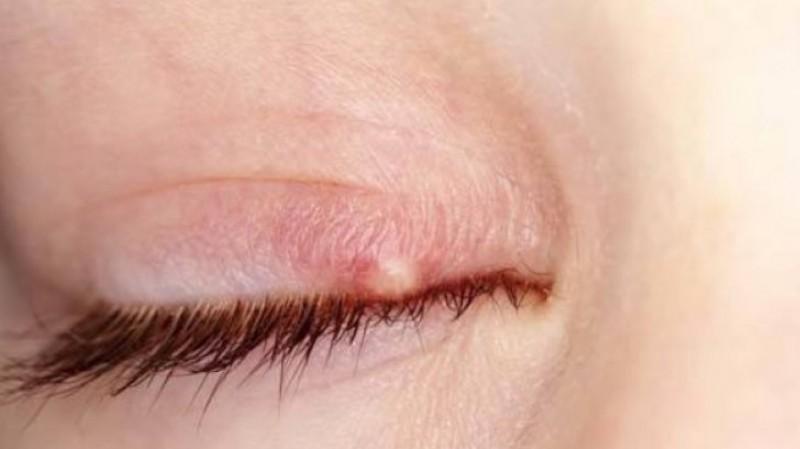 Punctele de grăsime în jurul ochilor- cum se tratează?