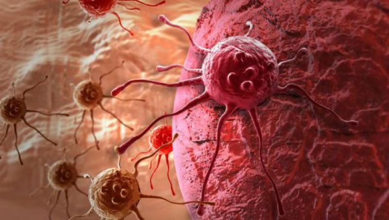 Se înmulțesc cancerele digestive în România. Un cunoscut medic avertizează