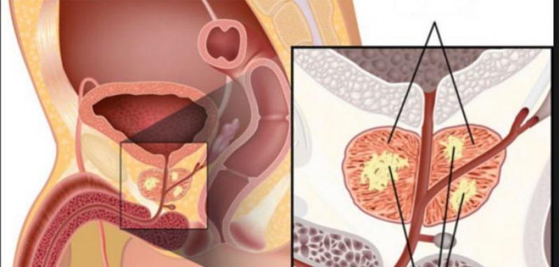 Semne ale cancerului de prostată, ignorate de bărbați