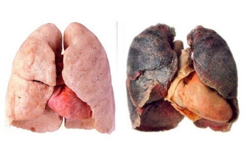 Semne că plămânii nu funcționează bine. Nu le ignorați, pot anunța cancerul!