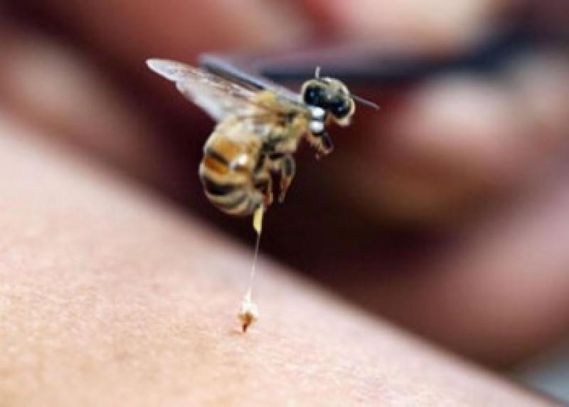 Tânăr ajuns la spital după ce a fost înţepat în testicul de o albină