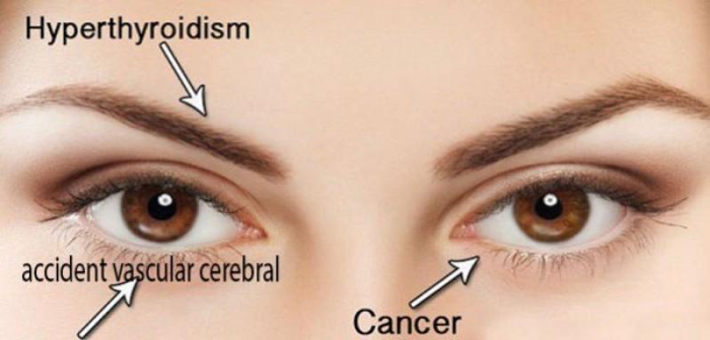 Te uiți în oglindă? Primele semne de îmbolnăvire se văd pe fața ta!