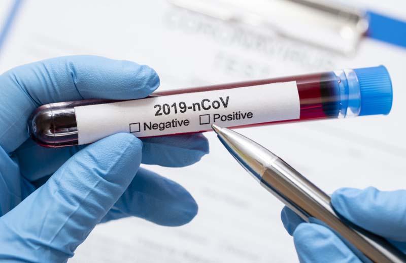 Toți romanii vor putea face teste anti-COVID în farmacii. Populația nu va plăti pentru teste