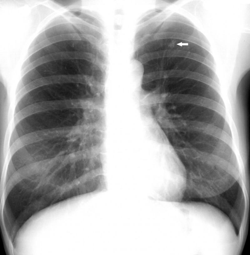 Tuberculoza- o boală ce nu ţine cont de vârstă, consumă bani, timp, răbdare, dar care se vindecă!