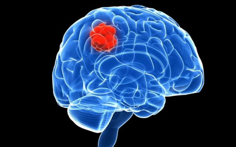 Tumorile cerebrale. De ce se formează, care sunt cele mai afectate persoane și care sunt semnele că ai tumori cerebrale
