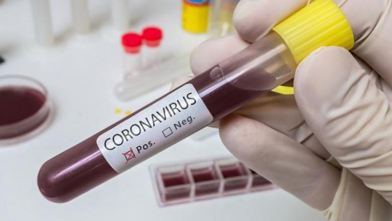 Zece cazuri noi de infectare cu Covid-19 la Botoșani, din circa 250 de teste
